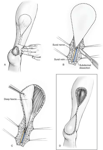 the sural artery flap