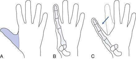 Rehabilitation and Prosthetic Restoration in Upper Limb