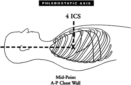 How to find phlebostatic axis