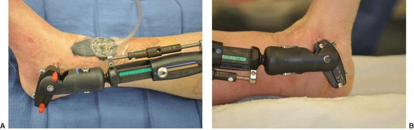 Veterinary Hybrid External Fixation Device
