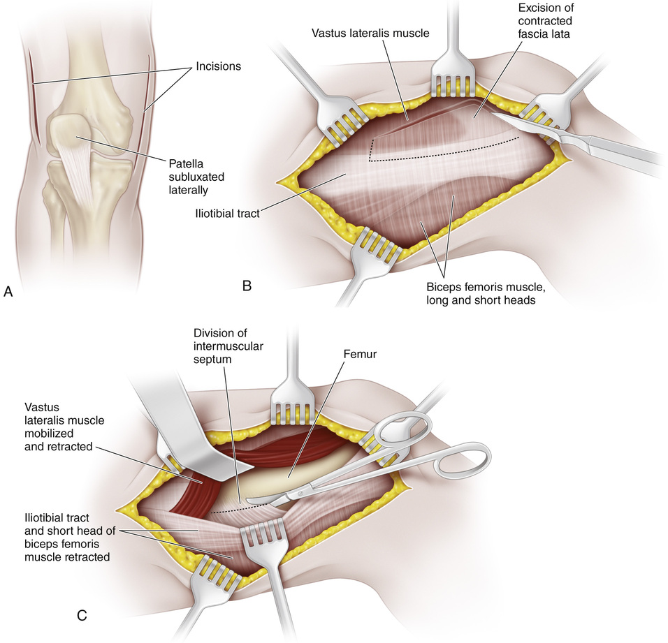 hight resolution of the first incision is medial beginning 3 cm medial and 4 cm proximal to the superior pole of the patella and extending