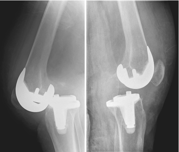 Treatment Of Instability After Total Knee Replacement