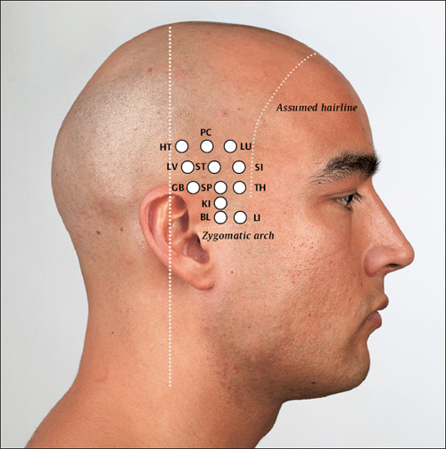 Yamamoto New Scalp Acupuncture | Musculoskeletal Key