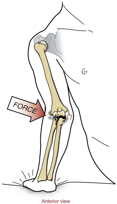 John Ulnar Ligament Collateral Tommy