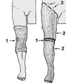 Fractures of the femur and injuries about the knee