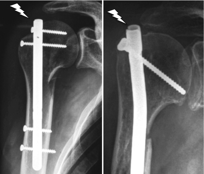 Intramedullary Nail for Proximal Humerus Fractures: An Old Concept ...