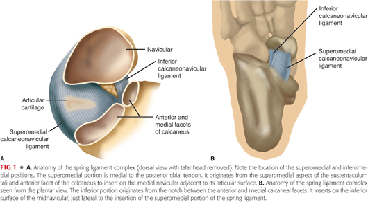 Spring Ligament Reconstruction | Musculoskeletal Key