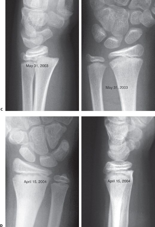 Fractures of the Distal Radius and Ulna | Musculoskeletal Key