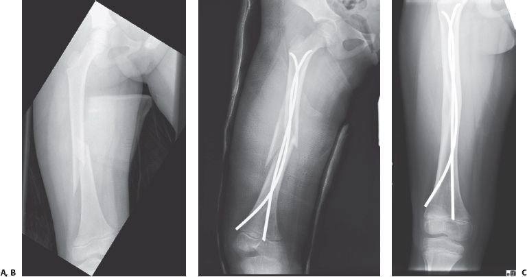 Femoral Shaft Fractures | Musculoskeletal Key