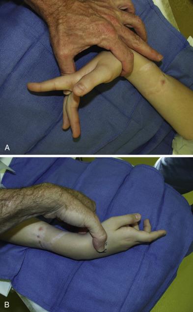 Tendon Laceration Extensor Finger