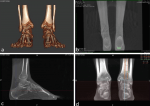 Hindfoot Alignment Assessed byWeight Bearing CT: Presence of aConstitutional Valgus?