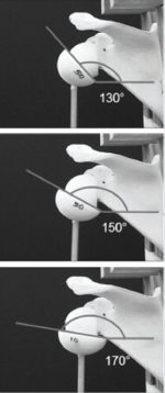 2 Reverse Total Shoulder Arthroplasty: Biomechanics and Design Challenges