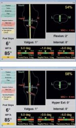 19 Computer-assisted navigation in proximal tibial osteotomy