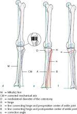 4 Basic principles of osteotomies around the knee