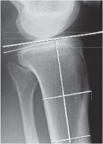 5 Detailed planning algorithm for high-tibial osteotomy