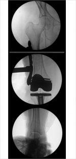 36 Distal Femur Fractures
