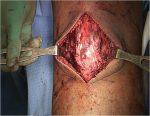 39 Quadriceps and Patellar Tendon Ruptures