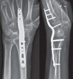 41 Total Wrist Fusion versus Denervation for Chronic Scaphoid Nonunion