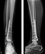 Tibia and fibula, distal: extraarticular multifragmentary distal tibial fracture—43-A3 in combination with a multifragmentary distal fibular fracture