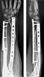 Minimally invasive plate osteosynthesis of diaphyseal forearm fractures—indications and surgical technique