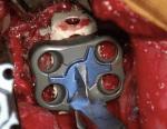 Ante-Psoas Approach for Lumbar Interbody Fusion