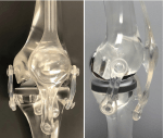 of the Unicompartmental Knee Arthroplasty