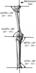 General Considerations and Complications for Pediatric Anterior Cruciate Ligament Reconstruction