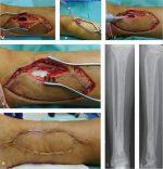 5 Osteomyelitis