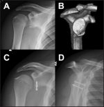 Instability in the Pediatric and Adolescent Athlete