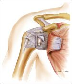 Open Treatment of Anterior Instability