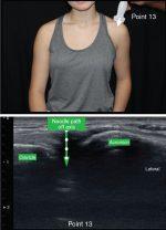 The 13-point shoulder ultrasound examination