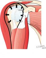 Structure and function of the rotator cuff