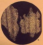 imagen de células vegetales