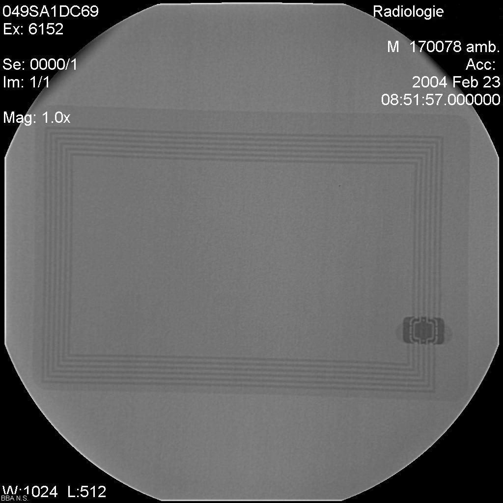 Foebud E.V. Zu Rfid / Transponder / Schnueffelchips