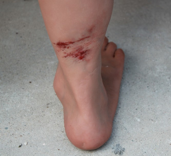 Silicone display legs with multiple wounds