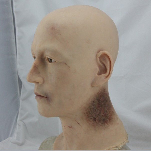 Silicone display head with heavy bruising in the neck