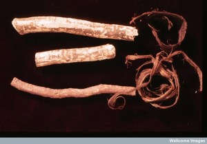 """Salvadora persica, also know as the """"Toothbrush Tree,"""" is typically used for making chewing sticks in Islamic tradition. They are recommended by the World Health Organization to promote oral health. Credit: Efraim Lev and Zohar Amar. Wellcome Image"""