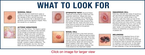 skin cancer - types of skin cancer | kimaja farwani., Human Body