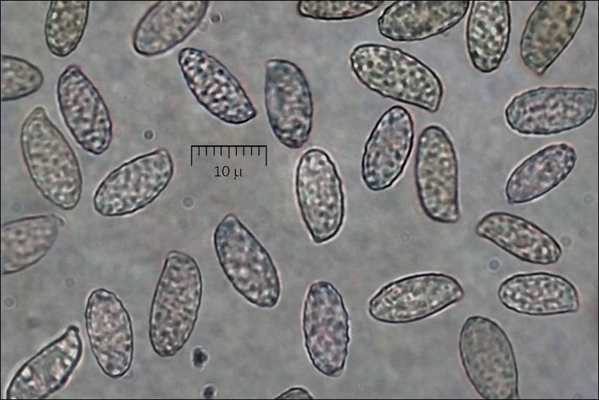 Mushroom Observer: Observation 191407: Ramaria aurea