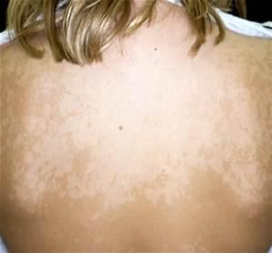 tinea versicolor skin that won't tan white spots on skin