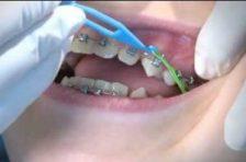 braces elastics orthodontic appliances kids
