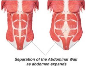 Diastasis Rectus Abdominis pregnancy belly won't go away