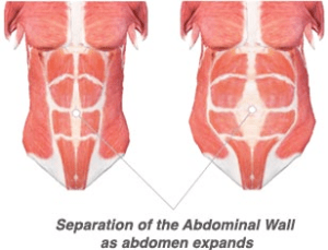 Diastasis Rectus Abdominis pregnancy belly won't go away