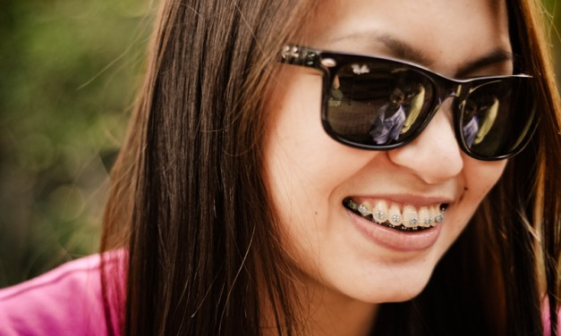 Adventures in Brackets: Summer is the best time to begin orthodontic treatment