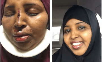 Somali-American Woman Beaten After Coming to Another Muslim Woman's Defense