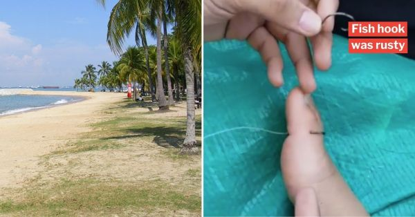 Girl Steps On Fish Hook At East Coast Park, Brother Urges Anglers To Be Responsible