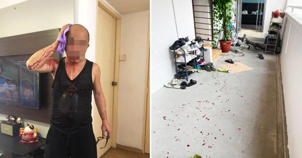 Man Allegedly Hit With Bike Chain In AMK, Neighbour Helps Keep Attacker At Bay