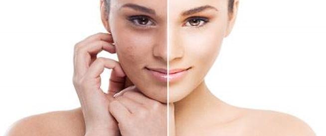 3 أفضل علاج لكلف الوجه العميق من الصيدلية /متألقة