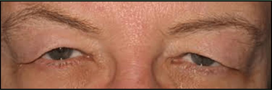 eyelid repair