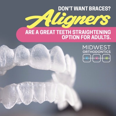 The Best Teeth Straightening Options For Adults | Midwest ...